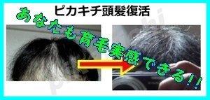 薄毛ハゲから頭髪復活を応援するサイト・ピカキチの育毛119番ドットコム